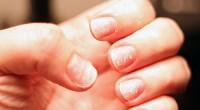 Poate nu ai făcut niciodată legătura între unghiile fragile şi lipsa de fier, însă află că este doar una dintre multiplele cauze ale acestei deficienţe.