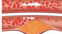 Ai probleme cu nivelul colesterolului? Nu te impacienta şi află ce metode de abordare trebuie să urmezi.